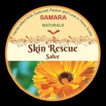 "Calendula Rosemary ""Eczema"" Salve"